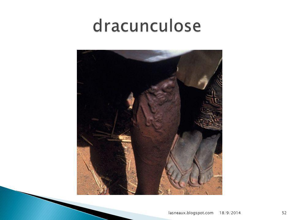 dracunculose lasneaux.blogspot.com 02/04/2017