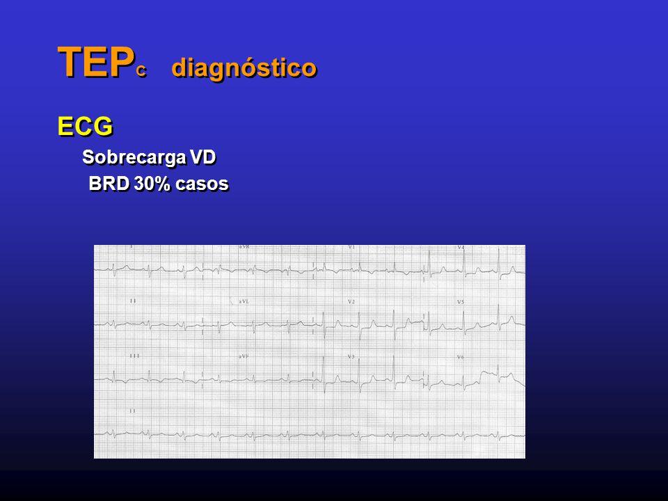 TEPC diagnóstico ECG Sobrecarga VD BRD 30% casos