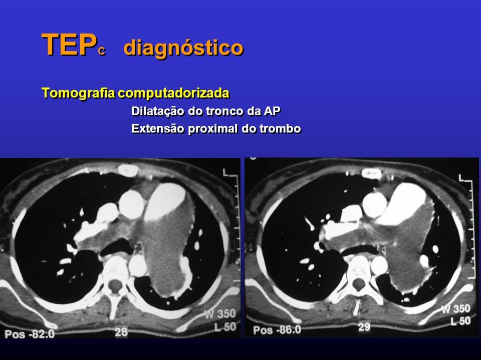 TEPC diagnóstico Tomografia computadorizada