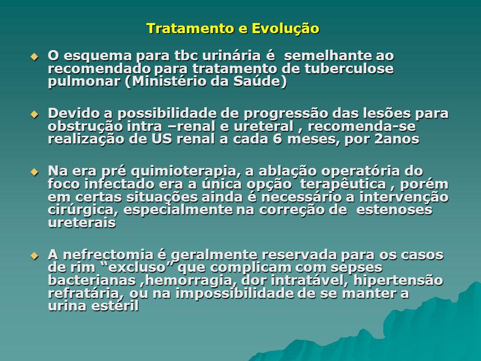 Tratamento e Evolução O esquema para tbc urinária é semelhante ao recomendado para tratamento de tuberculose pulmonar (Ministério da Saúde)