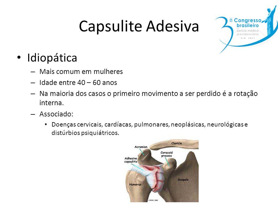 Capsulite Adesiva Idiopática Mais comum em mulheres
