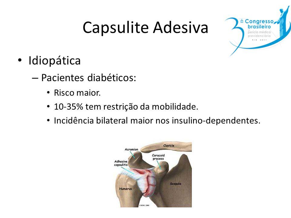 Capsulite Adesiva Idiopática Pacientes diabéticos: Risco maior.