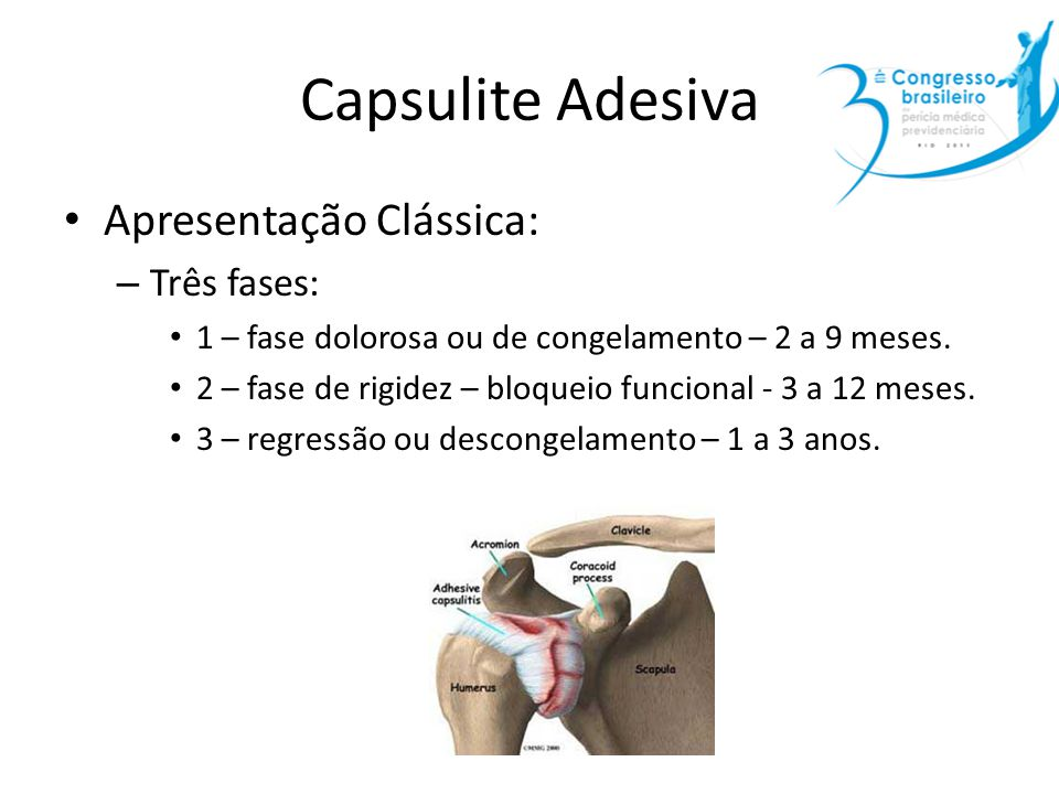 Capsulite Adesiva Apresentação Clássica: Três fases: