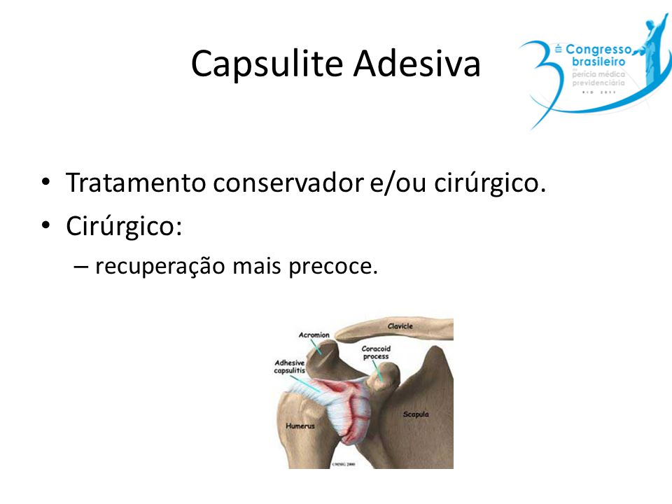 Capsulite Adesiva Tratamento conservador e/ou cirúrgico. Cirúrgico: