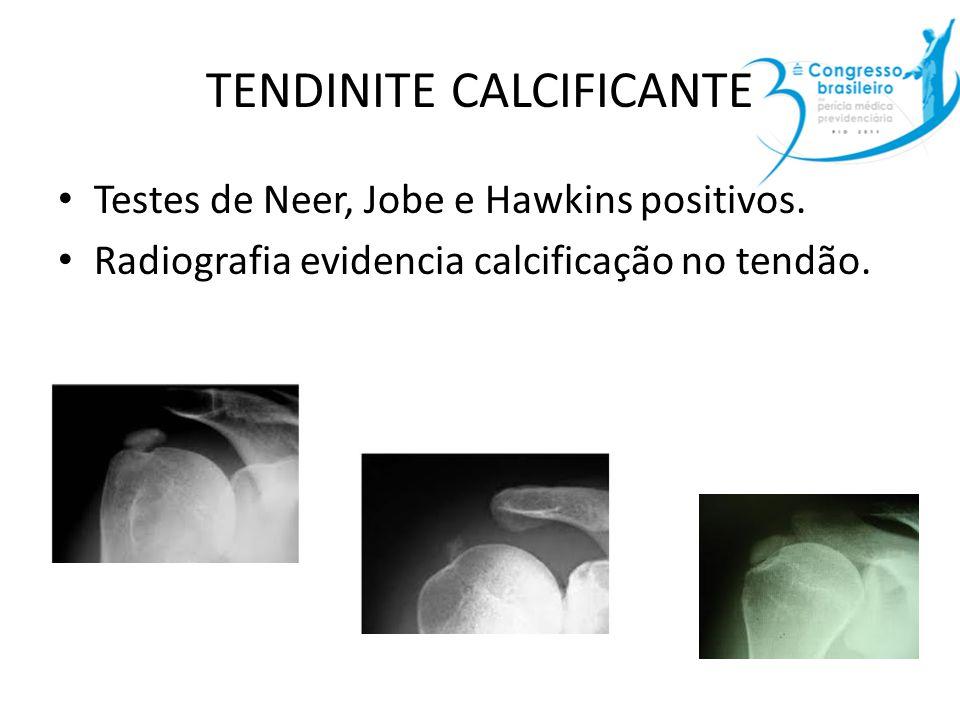 TENDINITE CALCIFICANTE