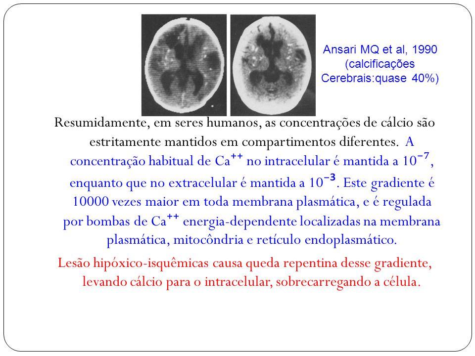 Ansari MQ et al, 1990 (calcificações. Cerebrais:quase 40%)