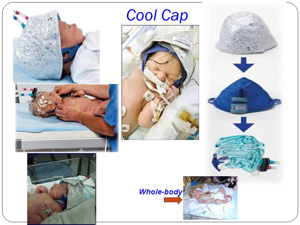 Cool Cap Whole-body