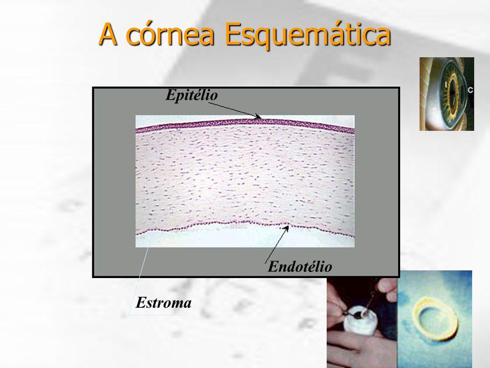 A córnea Esquemática Epitélio Estroma Endotélio