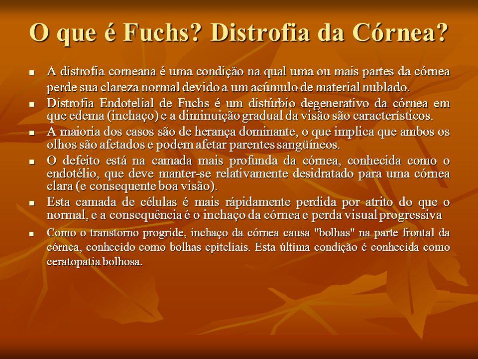 O que é Fuchs Distrofia da Córnea