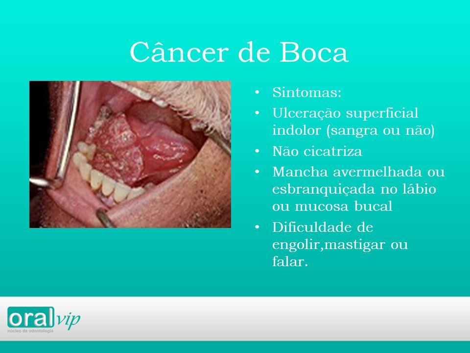 Câncer de Boca Sintomas: Ulceração superficial indolor (sangra ou não)