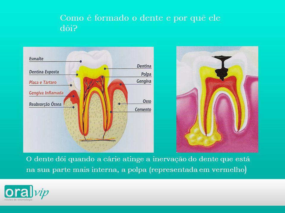 Como é formado o dente e por quê ele dói