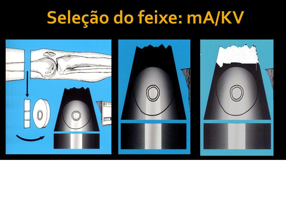 Seleção do feixe: mA/KV