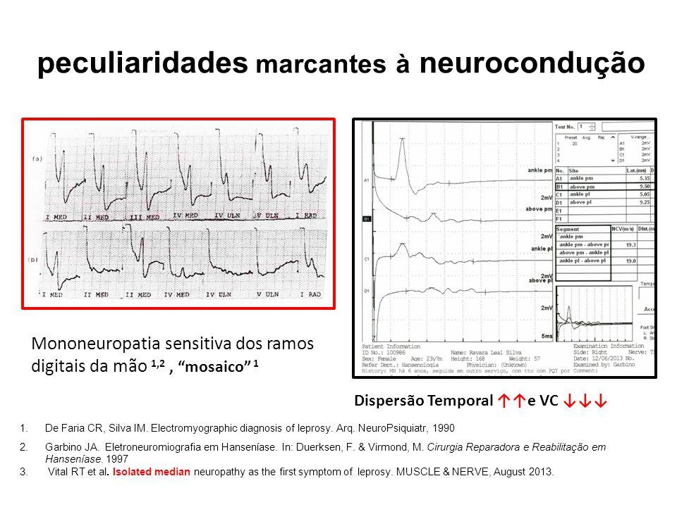 peculiaridades marcantes à neurocondução