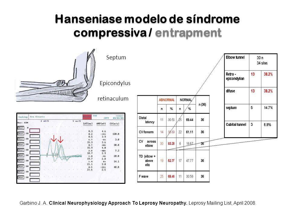 Hanseniase modelo de síndrome compressiva / entrapment