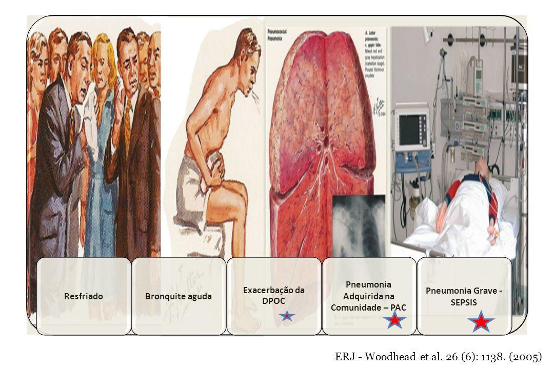 Pneumonia Adquirida na Comunidade – PAC Pneumonia Grave - SEPSIS