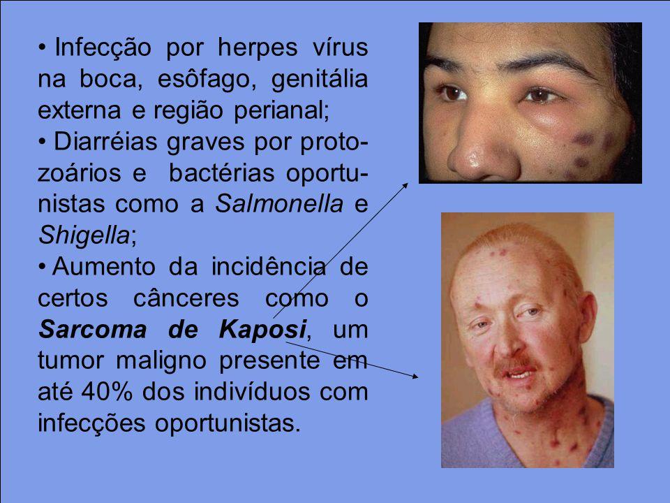 Infecção por herpes vírus na boca, esôfago, genitália externa e região perianal;