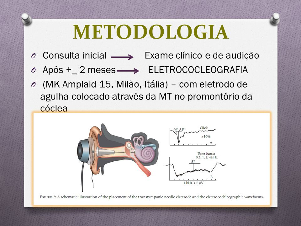 METODOLOGIA Consulta inicial Exame clínico e de audição