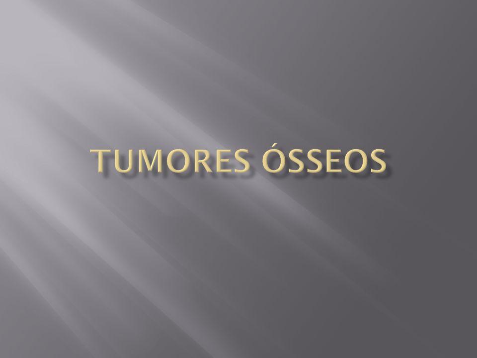 Tumores Ósseos
