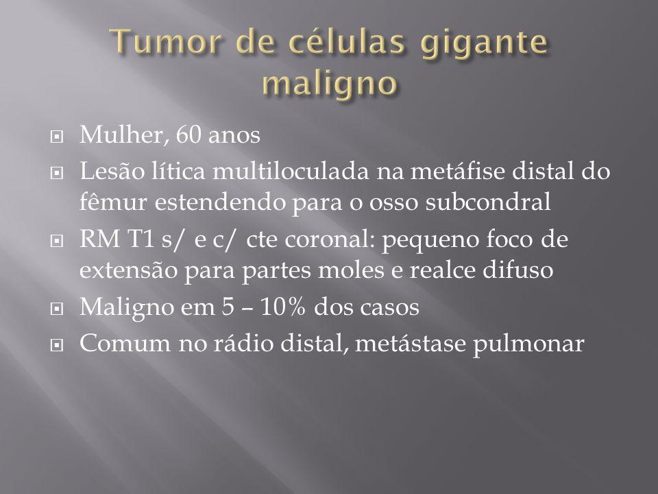 Tumor de células gigante maligno