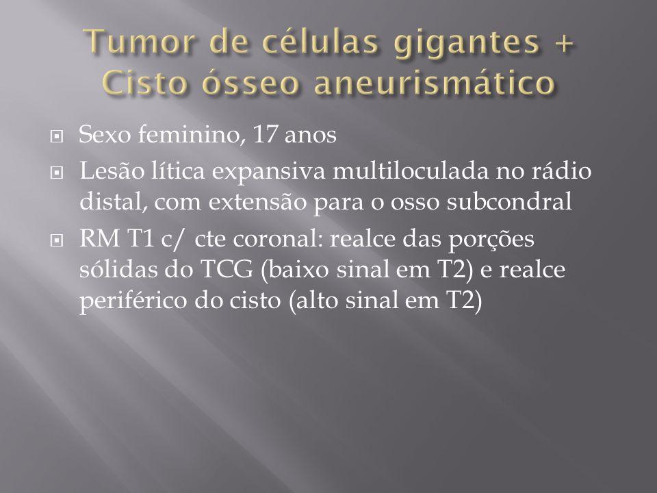 Tumor de células gigantes + Cisto ósseo aneurismático