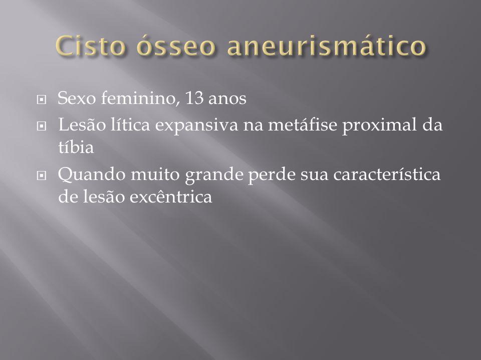 Cisto ósseo aneurismático