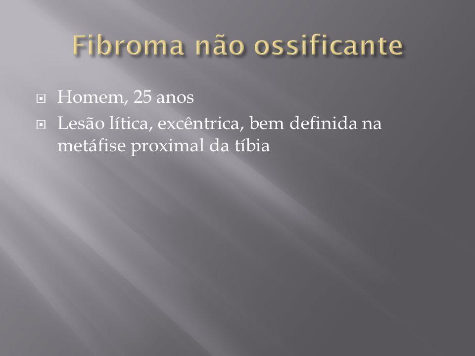 Fibroma não ossificante