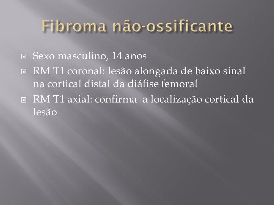 Fibroma não-ossificante