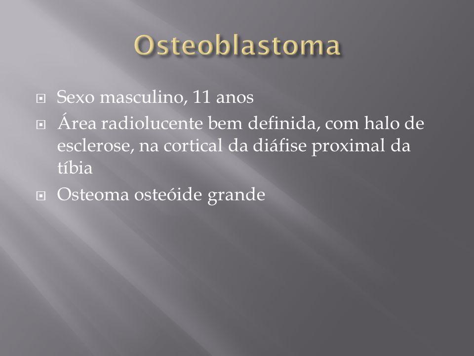 Osteoblastoma Sexo masculino, 11 anos
