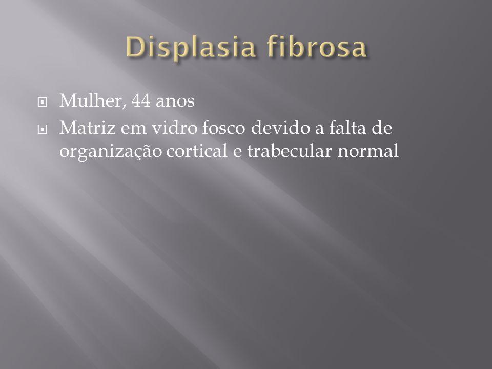 Displasia fibrosa Mulher, 44 anos