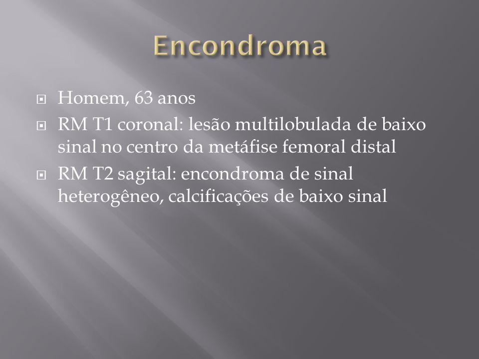 Encondroma Homem, 63 anos. RM T1 coronal: lesão multilobulada de baixo sinal no centro da metáfise femoral distal.