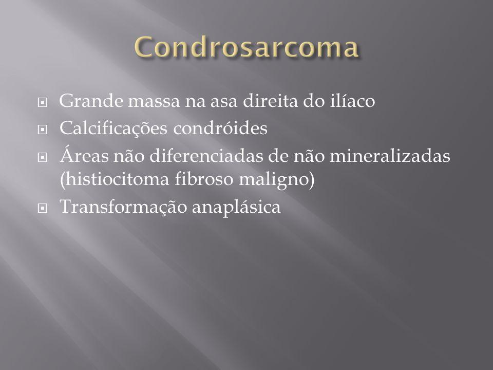 Condrosarcoma Grande massa na asa direita do ilíaco