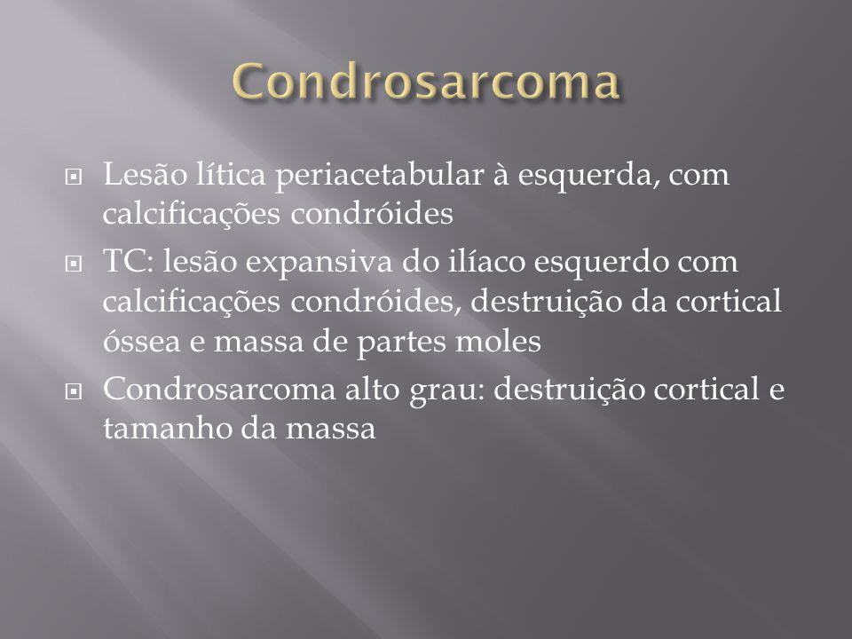 Condrosarcoma Lesão lítica periacetabular à esquerda, com calcificações condróides.