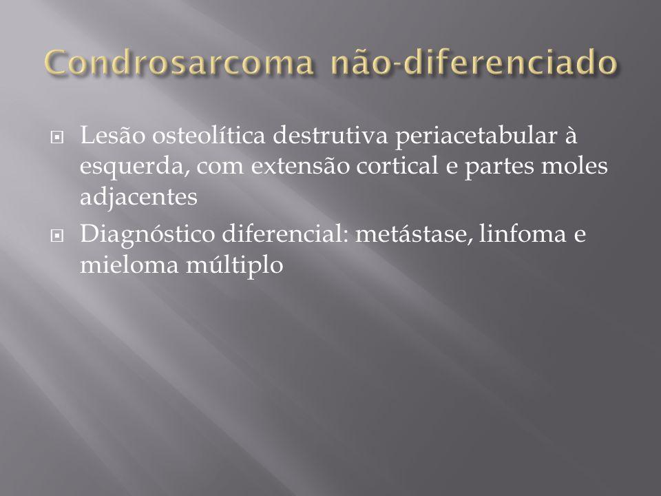Condrosarcoma não-diferenciado