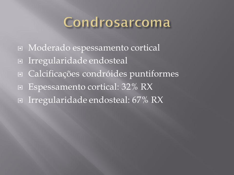 Condrosarcoma Moderado espessamento cortical Irregularidade endosteal