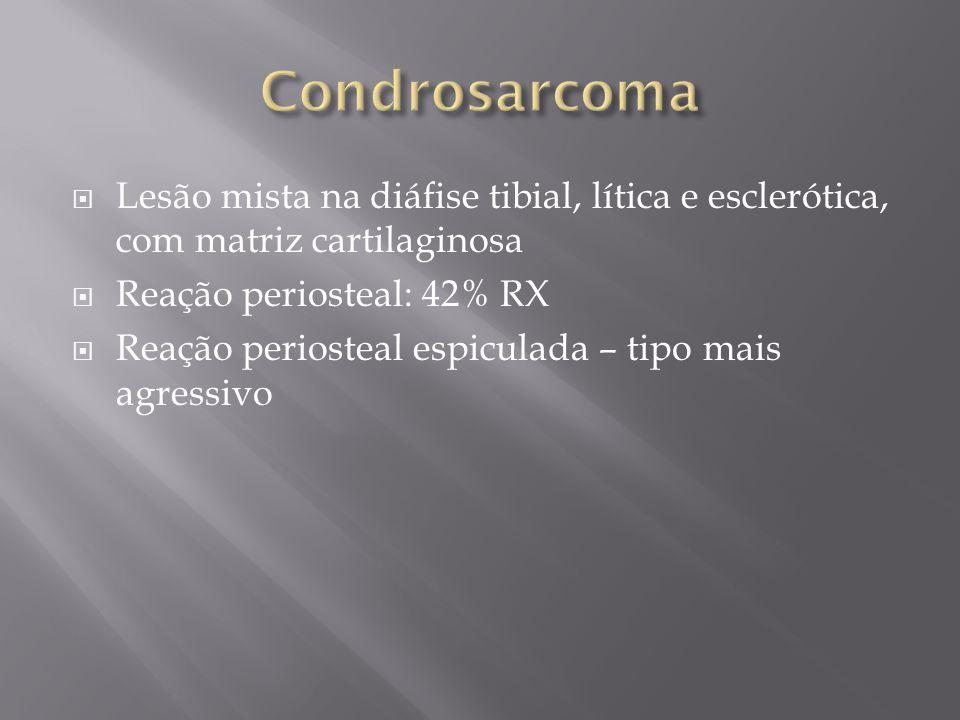 Condrosarcoma Lesão mista na diáfise tibial, lítica e esclerótica, com matriz cartilaginosa. Reação periosteal: 42% RX.
