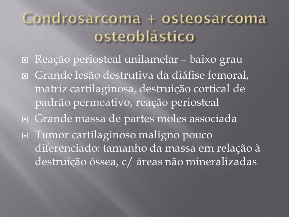 Condrosarcoma + osteosarcoma osteoblástico