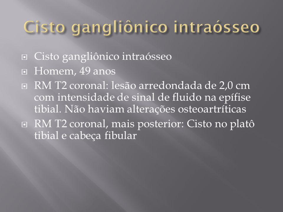 Cisto gangliônico intraósseo