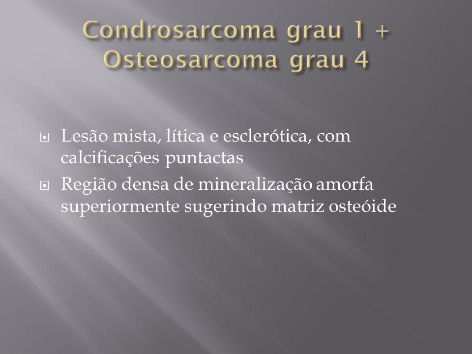 Condrosarcoma grau 1 + Osteosarcoma grau 4