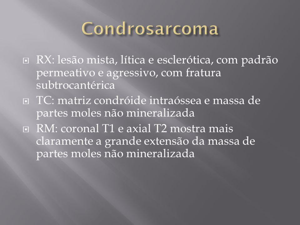 Condrosarcoma RX: lesão mista, lítica e esclerótica, com padrão permeativo e agressivo, com fratura subtrocantérica.