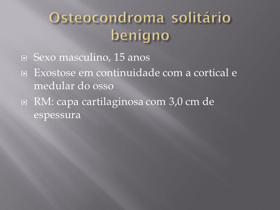 Osteocondroma solitário benigno