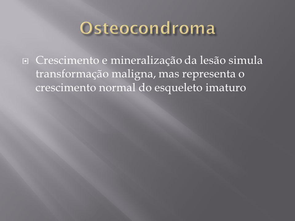 Osteocondroma Crescimento e mineralização da lesão simula transformação maligna, mas representa o crescimento normal do esqueleto imaturo.