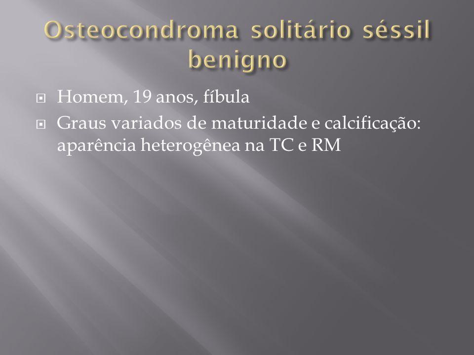 Osteocondroma solitário séssil benigno