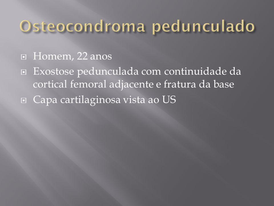 Osteocondroma pedunculado