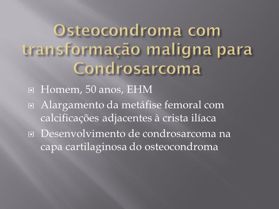 Osteocondroma com transformação maligna para Condrosarcoma