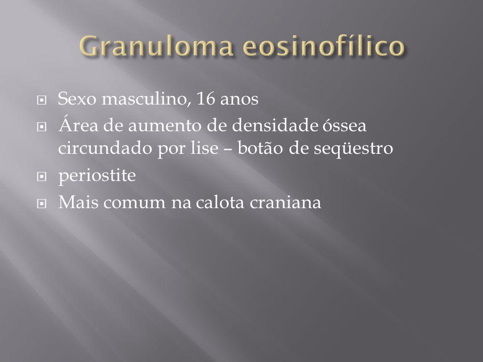 Granuloma eosinofílico
