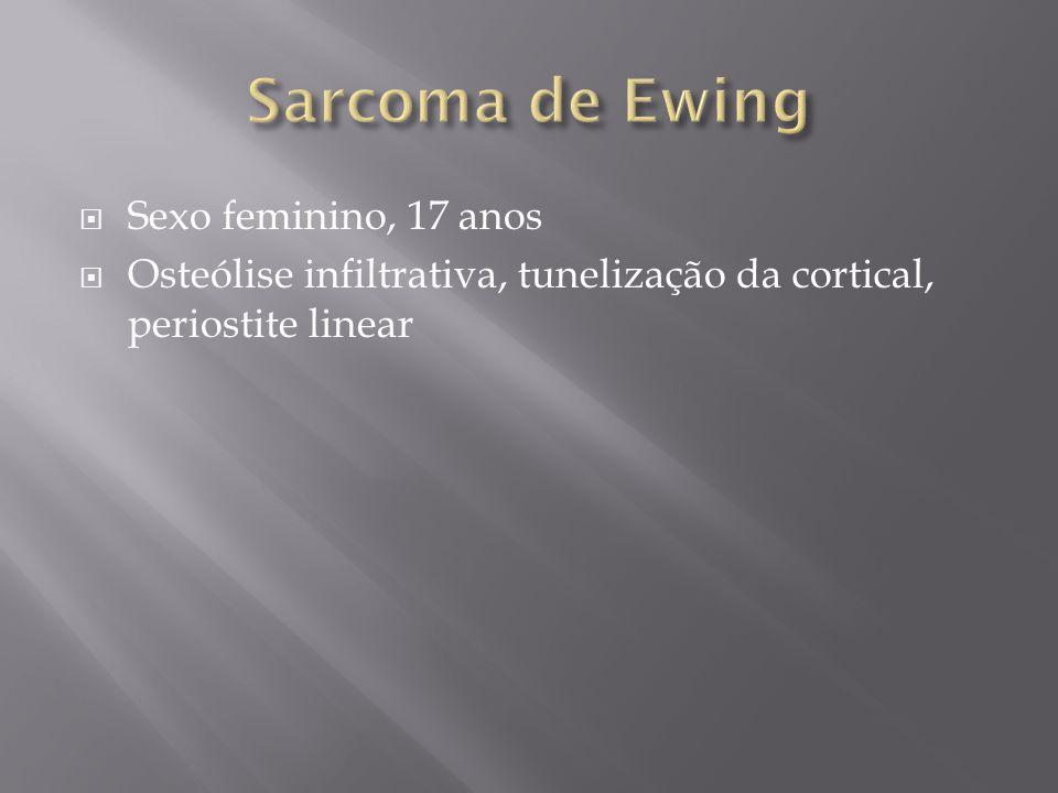 Sarcoma de Ewing Sexo feminino, 17 anos