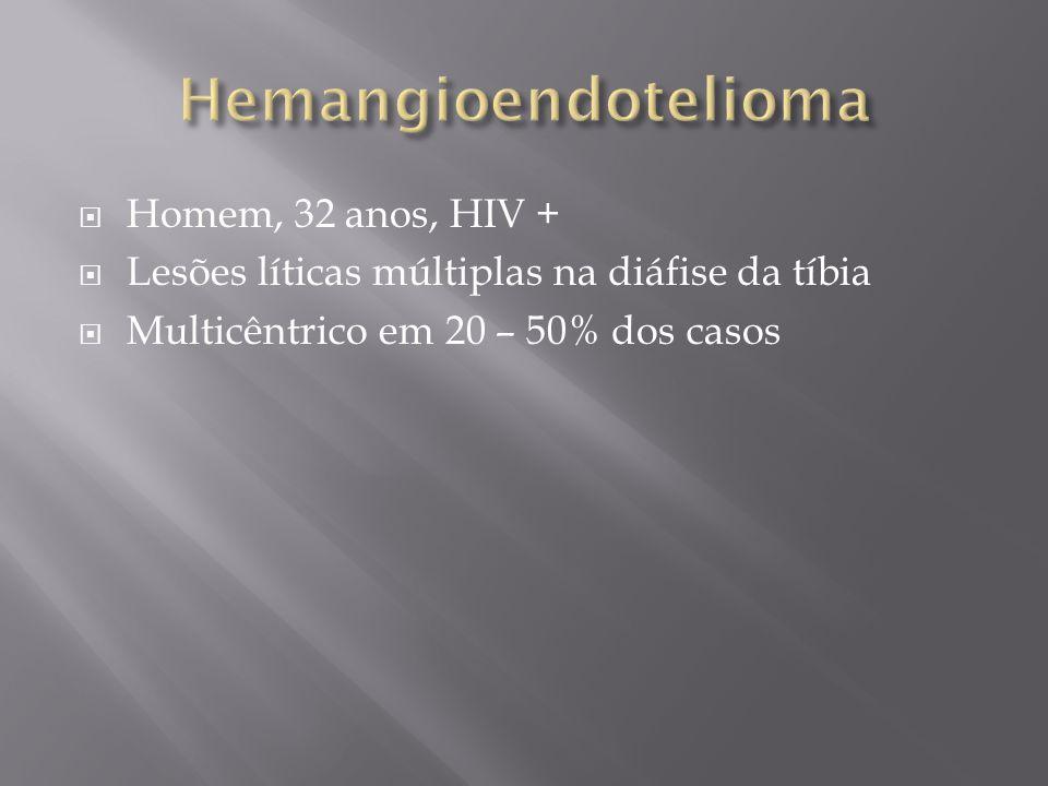 Hemangioendotelioma Homem, 32 anos, HIV +