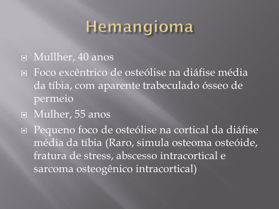 Hemangioma Mullher, 40 anos
