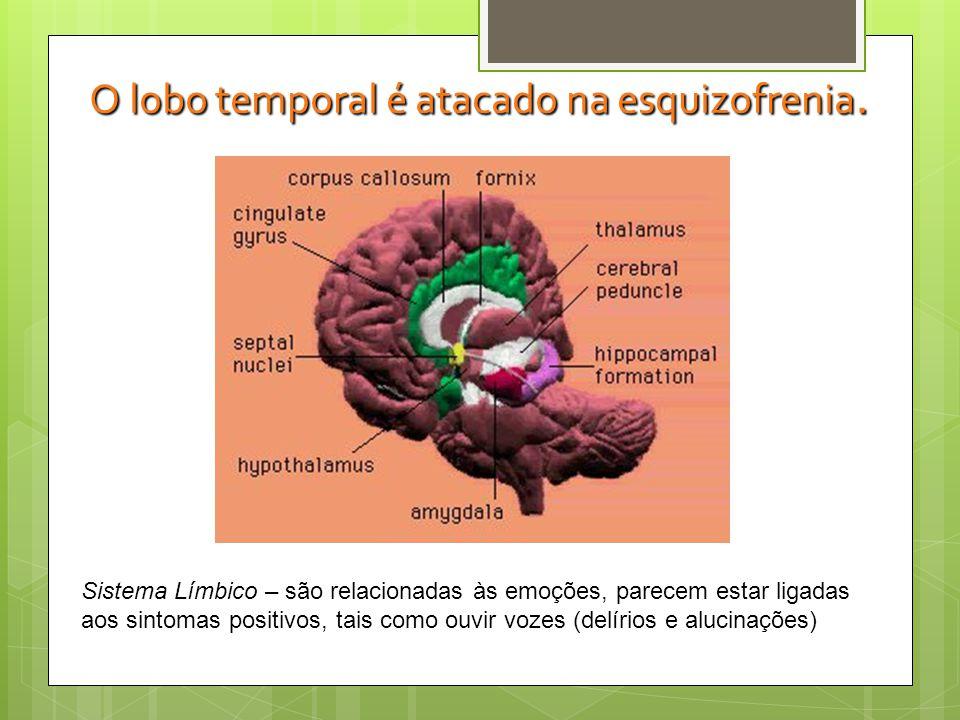O lobo temporal é atacado na esquizofrenia.