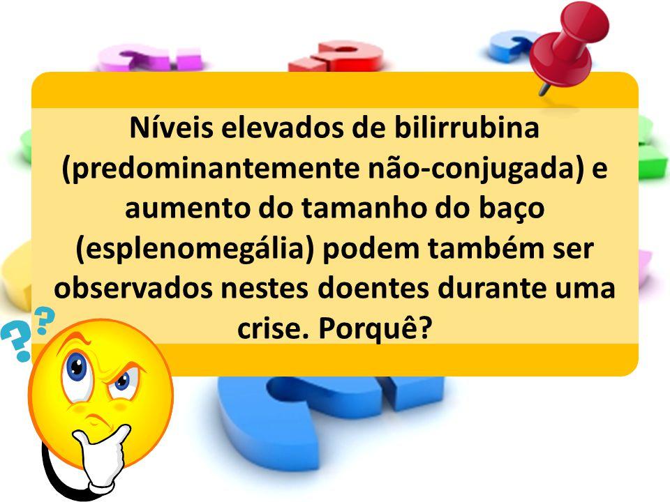 Níveis elevados de bilirrubina (predominantemente não-conjugada) e aumento do tamanho do baço (esplenomegália) podem também ser observados nestes doentes durante uma crise.